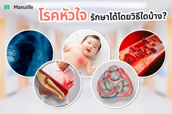 Heart-disease05
